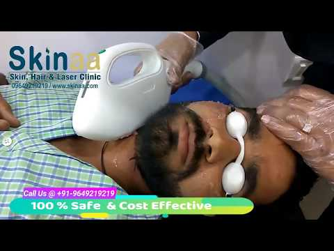 Permanent Laser Hair Removal Treatment For Face At Skinaa Clinic