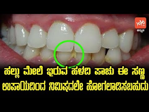 My Favorite Products For Whiter Teeth Worldnews
