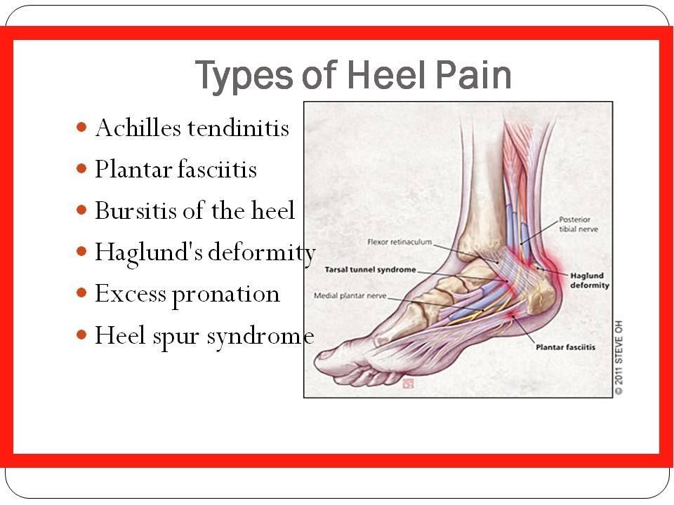 0c5c5de0ba Pain in Heel of Foot | How to Get Rid of Plantar Fasciitis, Achilles  Tendonitis Pain in Heel of Foot