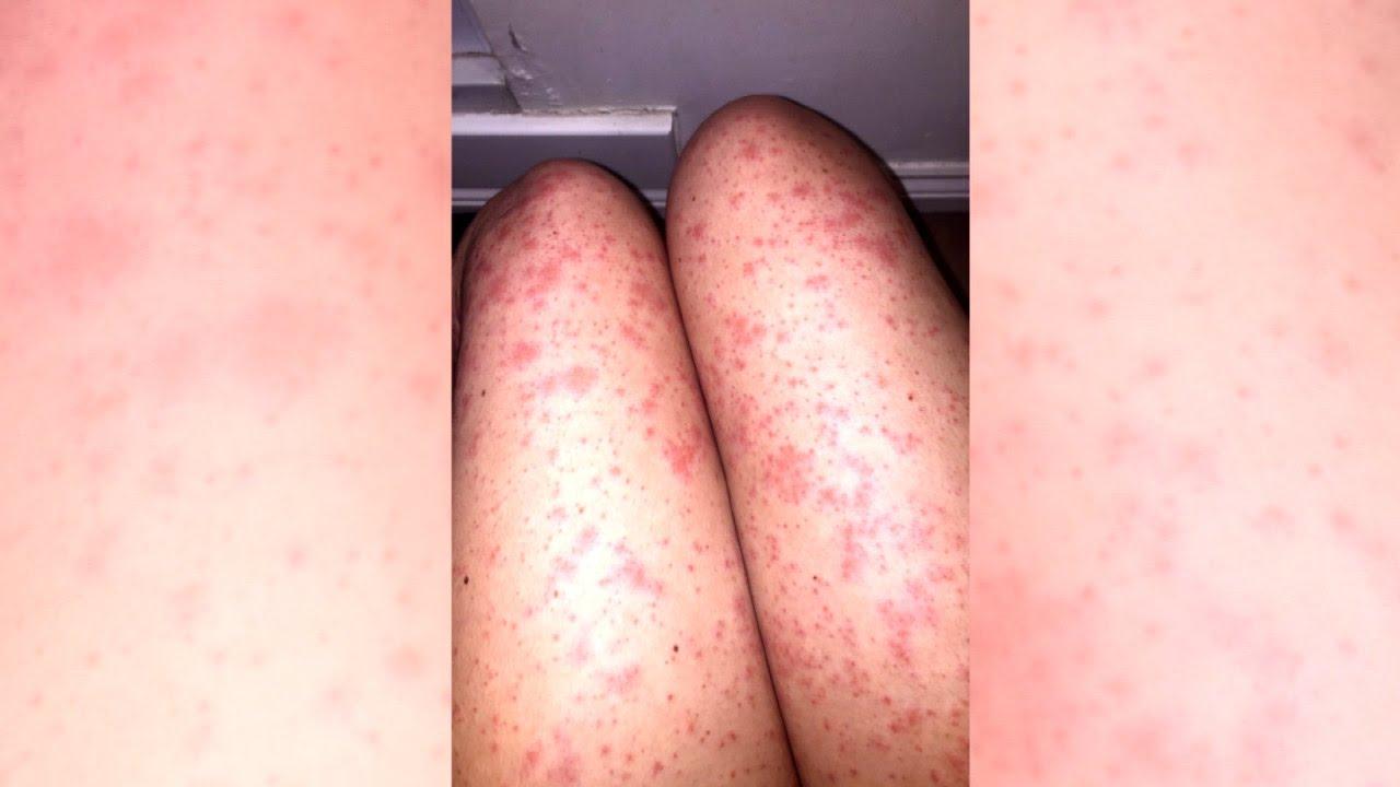 hautausschlag nach rasur