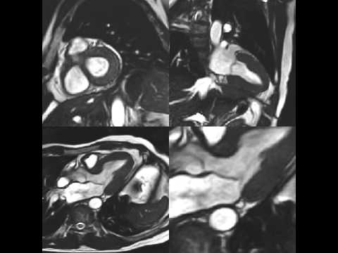 UCSF Radiology: The Multiple Planes of Cardiac MRI