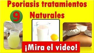 Psoriasis Tratamiento Natural | 15 Tratamientos Para La Psoriasis, Del 9 al 14