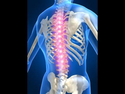 проявления остеохондроза шейного отдела