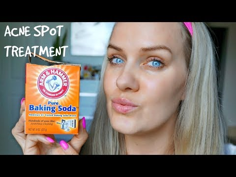 HOW TO GET RID OF ACNE USING BAKING SODA - SPOT TREATMENT IN 5 DAYS