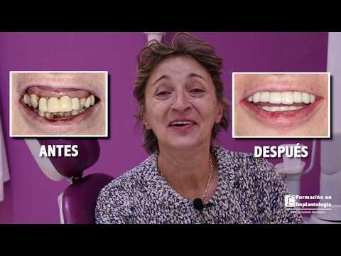 IMPLANTES DENTALES  MADRID  RESULTADOS INMEDIATOS  DR ISMAEL SORIANO