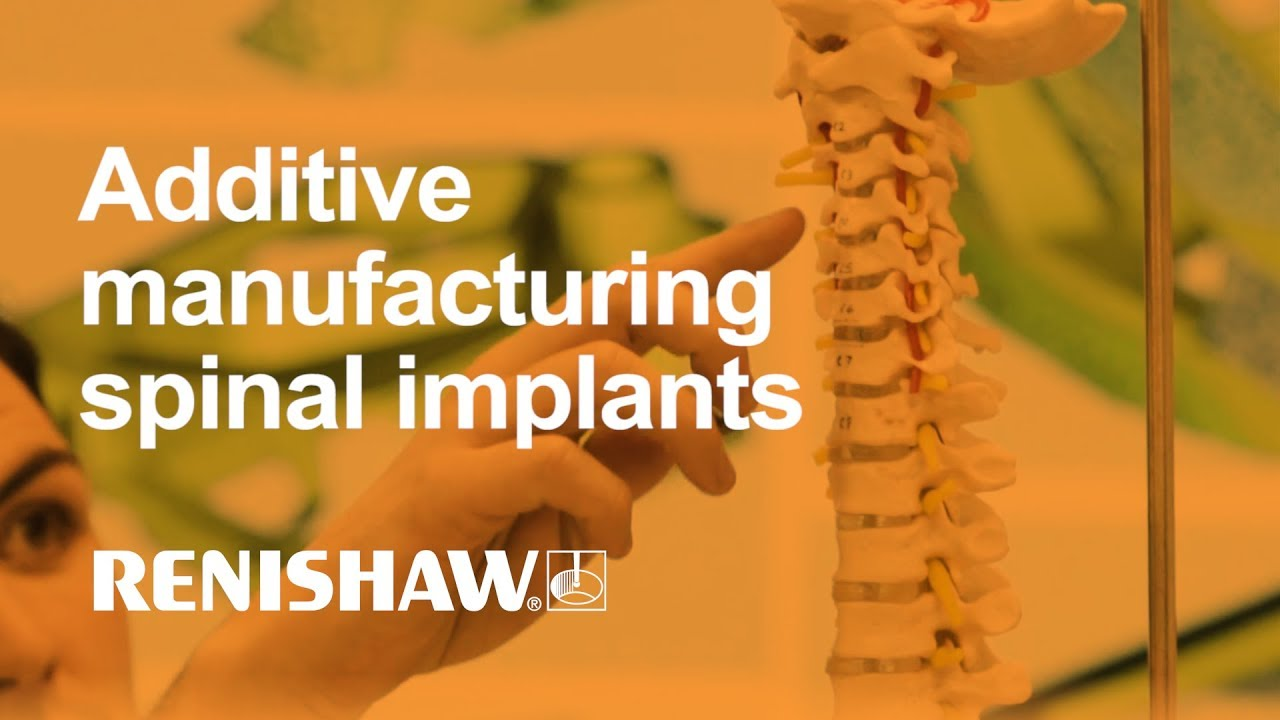 Streamlining additive manufacturing for spinal implants