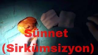 Download Sünnet Nasıl Yapılır Ameliyat Videosu izle