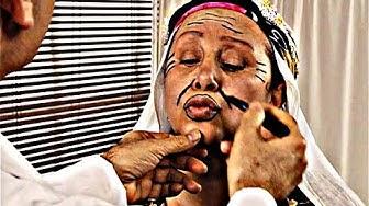 Akasya Durağı - Aney Botoks Yaptırırsa