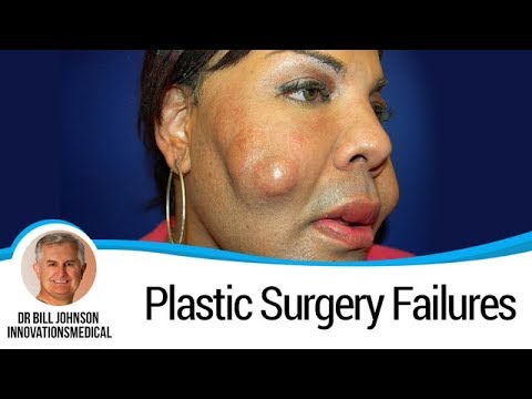 Cosmetic surgery a quick fix essay