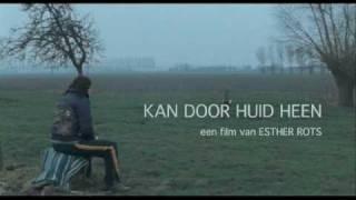 Trailer Kan Door Huid Heen