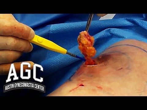 Doctor Fixes Gynecomastia with Interesting Techniques - Austin Gynecomastia Center