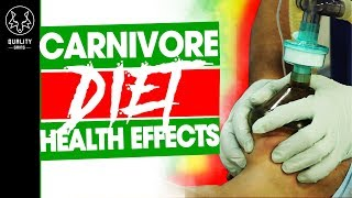 The Little Secret About The Carnivore Diet - How Healthy Is Only Eating Meat?