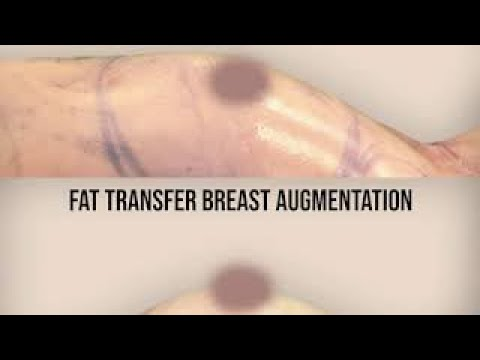natural-breast-augmentation-by-squlpt-body-shaping