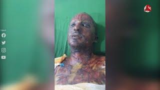إب ... وفاة بائع الآيسكريم الذي أحرق نفسه احتجاجا على دبة غاز