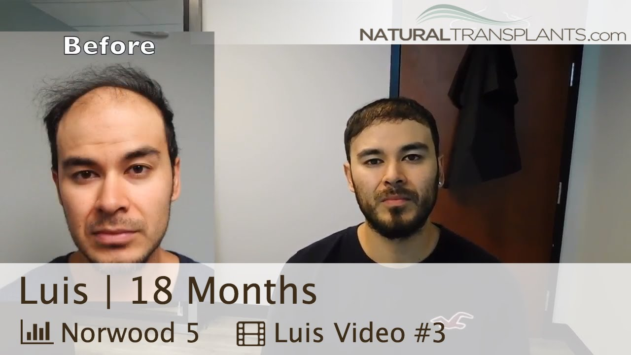 After Hair Transplant 2018 Hair Transplant Before And After Luis