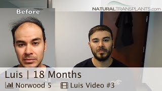 After Hair Transplant 2018 | Hair Transplant Before And After (Luis)