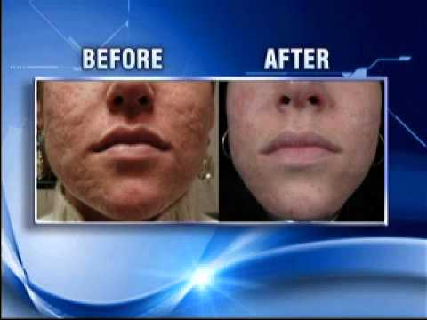 Treatment of Acne Scars by Brian S. Biesman, M.D. Featured on WKRN - Nashville, TN