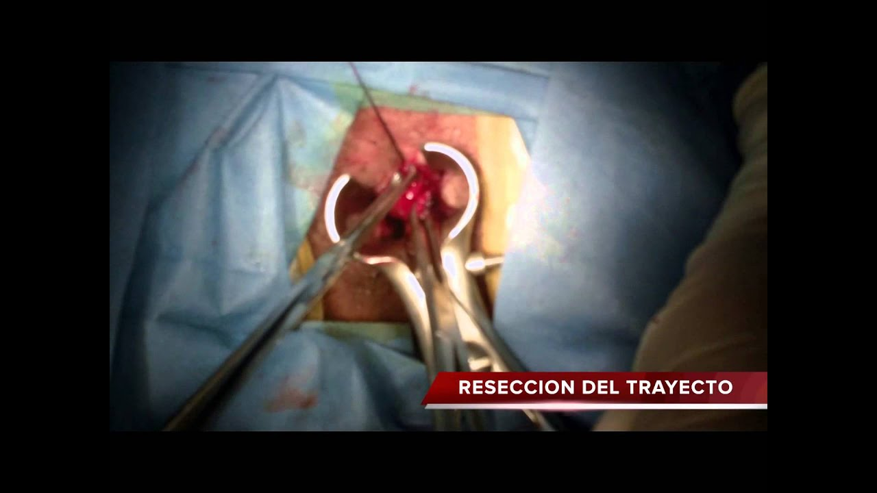 Absceso Anorrectal Pdf