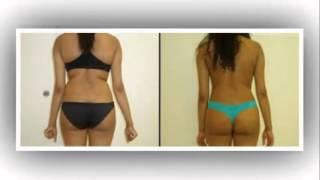 Atlanta Liposuction Dr. Michael Carter B&A Photos