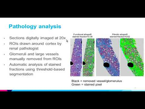 8th Annual TMII Symposium – 2018 – Session IV – Cancer & Body Imaging – Octavia Bane, PhD