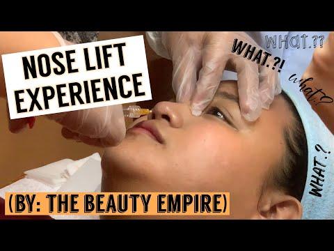My Nose Lift Experience (by: The Beauty Empire) || Glorissa Mae