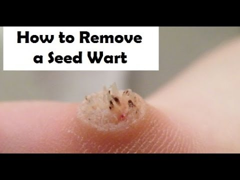 How To Remove A Wart Naturally At Home