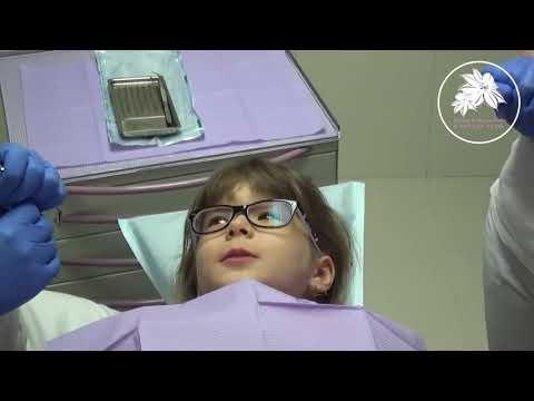 Удаление  53 молочного зуба. Вызов зубной Феи. Без монтажа одним дублем.