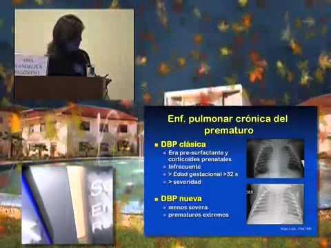 Efecto del corticoides en el desarrollo pulmonar Dra  María