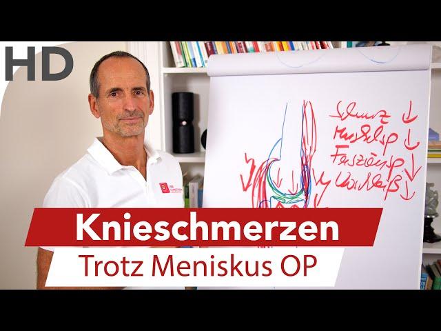 Knieschmerzen trotz Meniskus OP // Ursachen & Behandlung