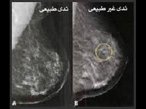 العلاج الكيميائى لسرطان الثدى د.محمد جاد   breast chemotherapy #الثدى