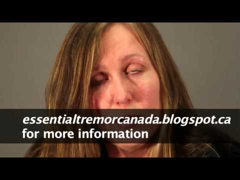 Bringing Awareness To Essential Tremor