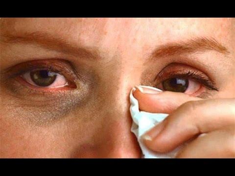 Болят глаза слезятся чешутся