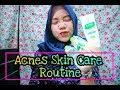 ACNES??? MY SKIN CARE ROUTINE    Honest Review    Anggi Noviana Wijaya