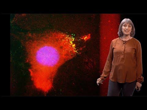 Norma Andrews (UMCP) 1: Mechanisms of Plasma Membrane Repair
