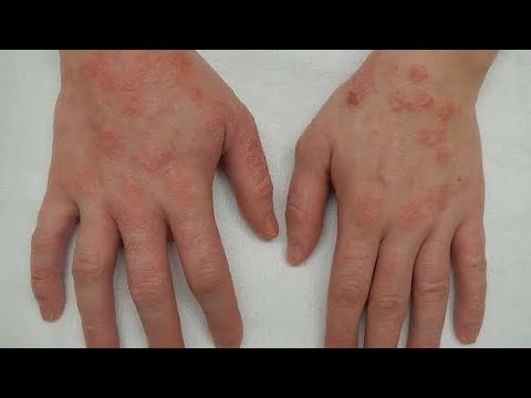 ITCHING OR ECZEMA OR KHAJ KHUJLI KA HERBAL TREATMENT ( IN HINDI)