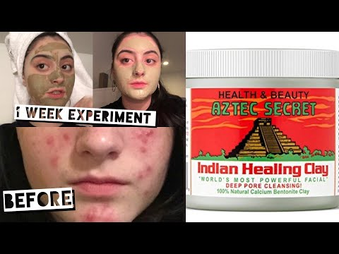 AZTEC HEALING CLAY MASK EXPERIMENT ON ACNE PRONE SKIN | GET RID OF ACNE FAST | MOST POWERFUL MASK