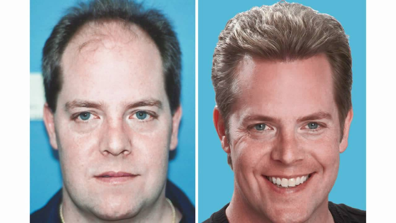 Hair Transplant Review Amazing Results - YouTube