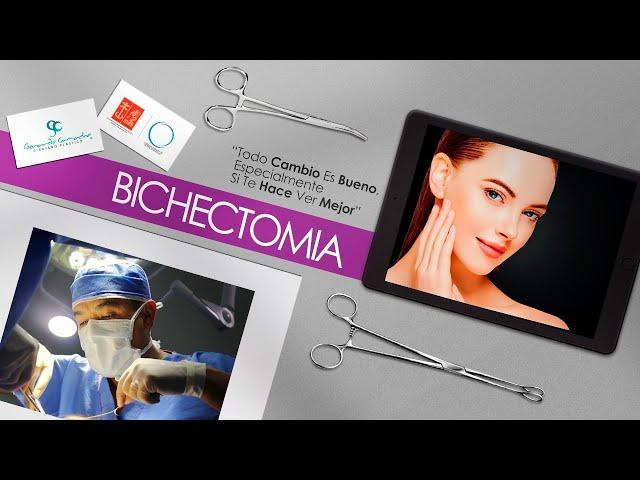 Bichectomia Bogotá Colombia o Cirugía de cachetes Bogotá Cirugía de Adelgazamiento de mejillas