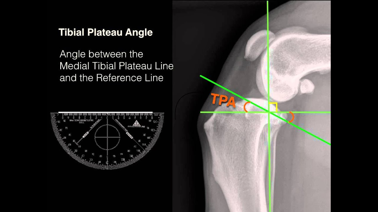 Measuring Tibial Plateau Angle Youtube