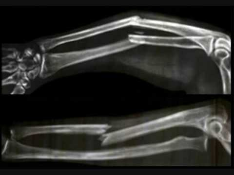 Broken Bone Pictures And X-Rays - YouTube