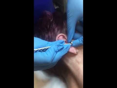 Daith piercing in action