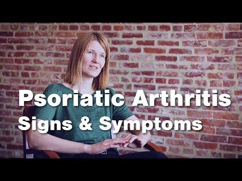 Psoriatic Arthritis Signs And Symptoms | Johns Hopkins Medicine