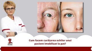 Cum facem curatarea ochilor unui pacient imobilizat la pat?