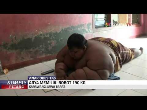 Awal Mula Arya Alami Obesitas