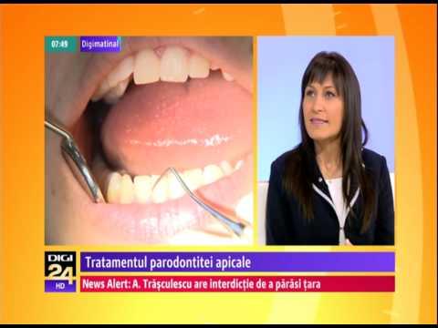 Tratamentul parodontitei apicale