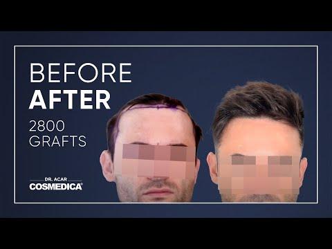 COSMEDICA DR.ACAR ,2800 Grafts  FUE Hair Transplant,Turkey-Istanbul