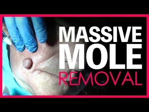 Mole Removal (Surgery)