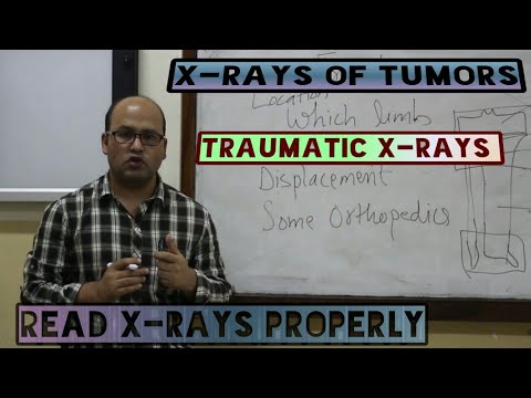 HOW TO READ X-RAY PROPERLY IN ORTHOPAEDICS | MADE EASY BY DR. BISHNU POKHAREL | PART 1