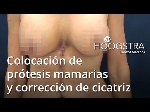 Colocación de prótesis mamarias y corrección de cicatriz (16027)