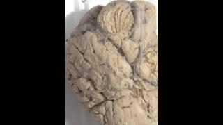 Кровоснабжение головного и спинного мозга 1